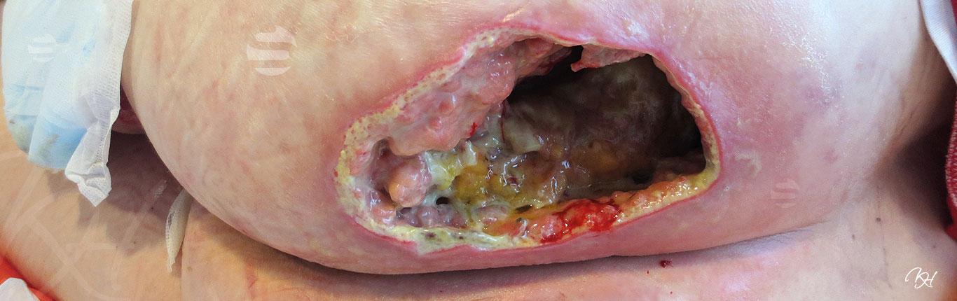 oncologische ulcera